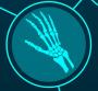Ортопедия в Германии - лечение кисти руки с BeClinic Medical Services